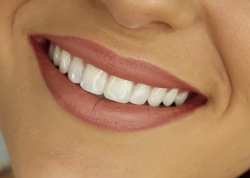 Teeth Whitening Procedures – The Facts and Fiction